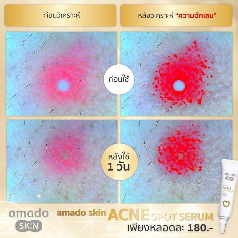 AMADO SKIN Acne Spot Serum ขจัดปัญหาความมันลึกถึงต้นตอ ควบคุมการผลิตน้ำมันส่วนเกิน (SEBUM) ลดการอักเสบของสิว ลดเลือนรอยดำ รอยแดง ฟื้นฟูและซ่อมเซลล์ผิวที่ถูกทำลาย ด้วยสารสกัดจากธรรมชาติ ช่วยเร่งกระบวนการผลัดเซลล์ผิวเพื่อไม่ให้เป็นสิวอุดตัน กระตุ้นการสร้างคอลลาเจน และอิลาสติน