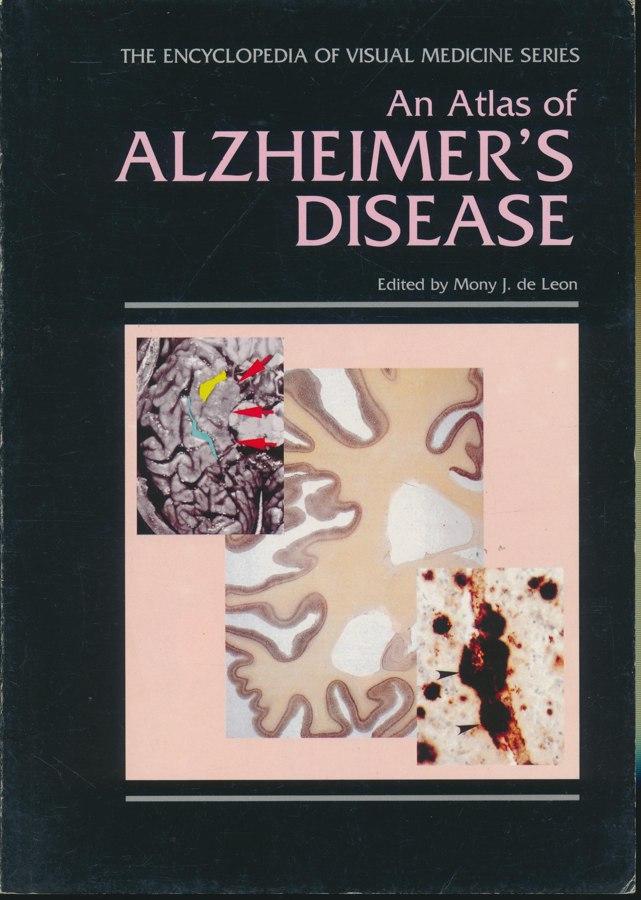 An Atlas of ALZHEIMER'S DISEASE