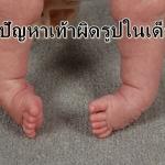 6 ปัญหาเท้าผิดรูปในเด็กเล็ก